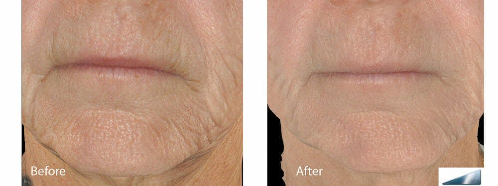 Skin Tightening and Wrinkle Reduction Gallery - Patient 49140213 - Image 1