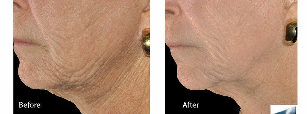 Skin Tightening and Wrinkle Reduction Gallery - Patient 49140215 - Image 1