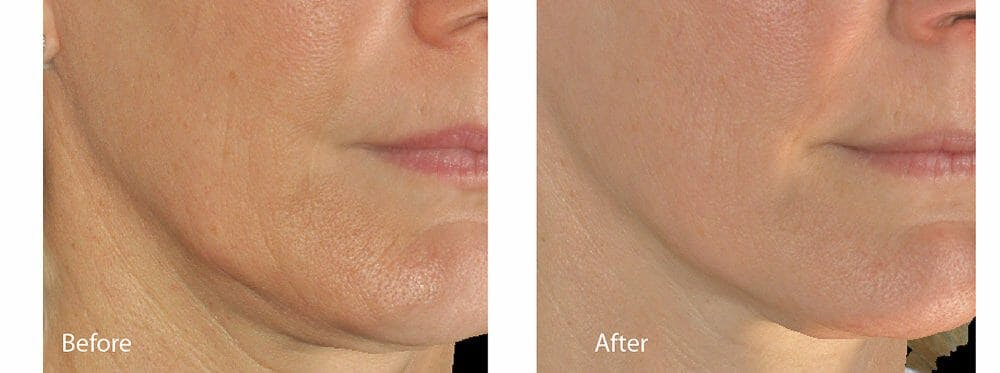 Skin Tightening and Wrinkle Reduction Gallery - Patient 49140216 - Image 1