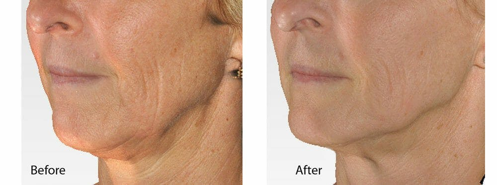 Skin Tightening and Wrinkle Reduction Gallery - Patient 49140217 - Image 1