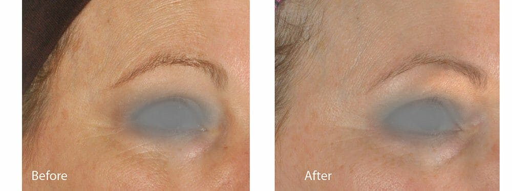 Skin Tightening and Wrinkle Reduction Gallery - Patient 49140219 - Image 1