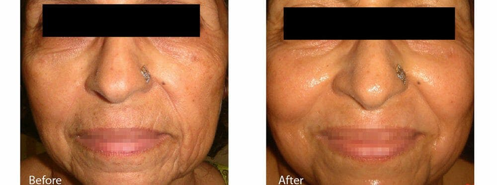 Skin Tightening and Wrinkle Reduction Gallery - Patient 49140221 - Image 1