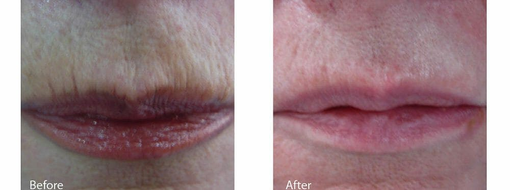 Skin Tightening and Wrinkle Reduction Gallery - Patient 49140222 - Image 1