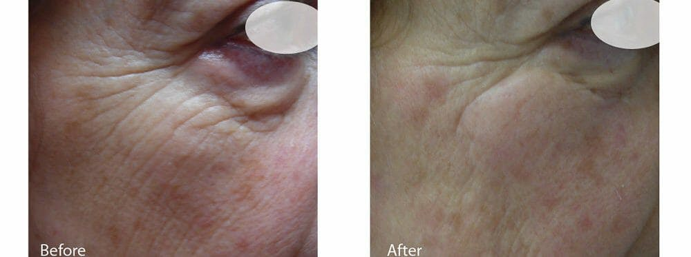 Skin Tightening and Wrinkle Reduction Gallery - Patient 49140223 - Image 1