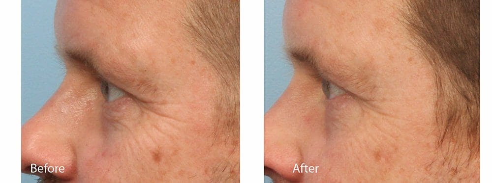 Skin Tightening and Wrinkle Reduction Gallery - Patient 49140224 - Image 1