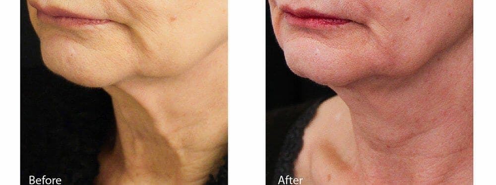Skin Tightening and Wrinkle Reduction Gallery - Patient 49140228 - Image 1