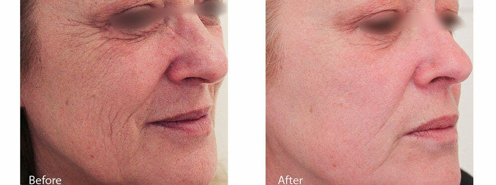 Skin Tightening and Wrinkle Reduction Gallery - Patient 49140229 - Image 1