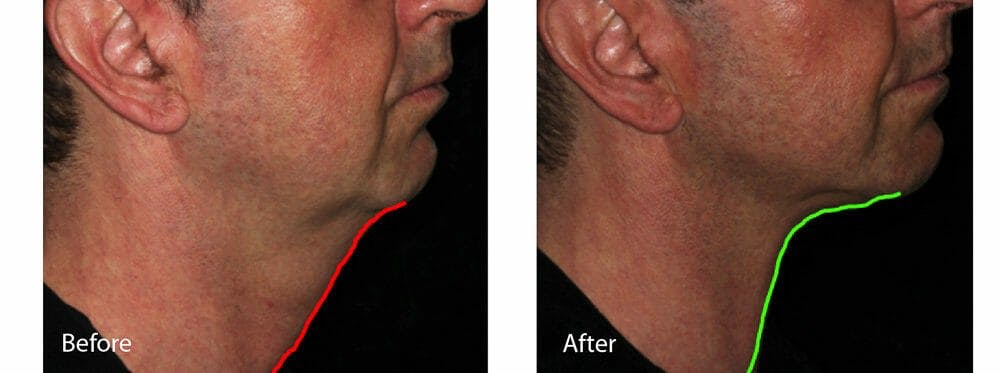 Skin Tightening and Wrinkle Reduction Gallery - Patient 49140236 - Image 1