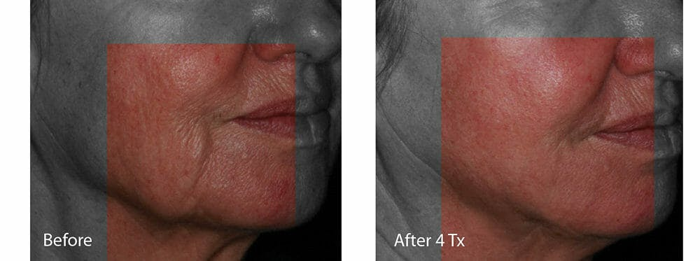 Skin Tightening and Wrinkle Reduction Gallery - Patient 49140239 - Image 1