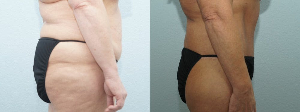 Body Lift Gallery - Patient 49149606 - Image 3