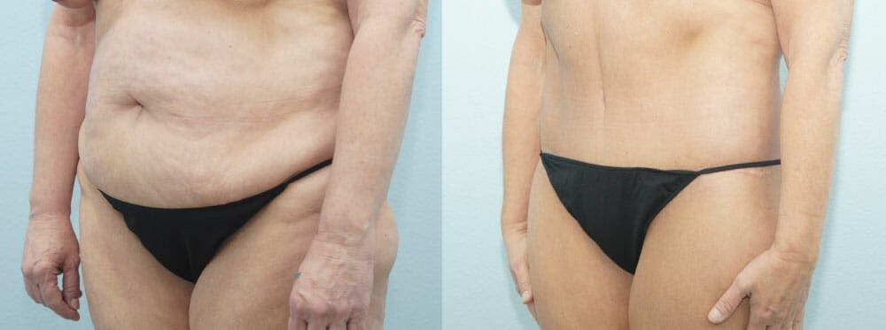 Body Lift Gallery - Patient 49149606 - Image 6