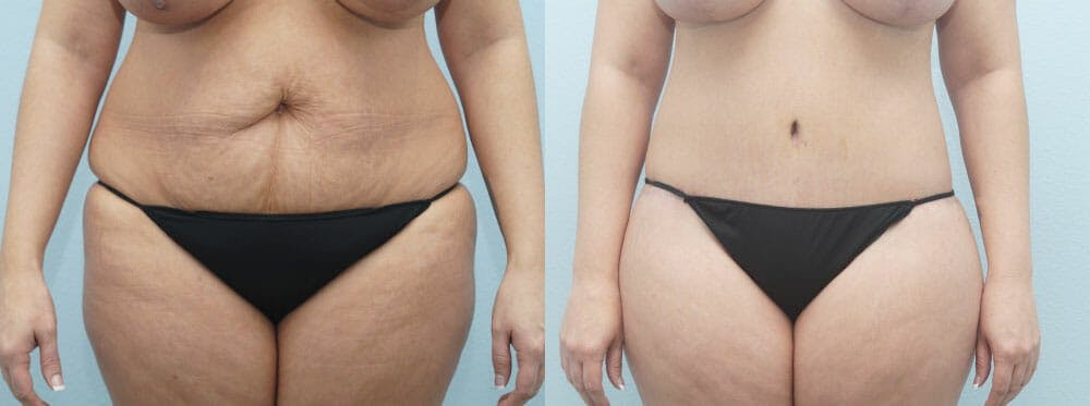 Body Lift Gallery - Patient 49149607 - Image 1