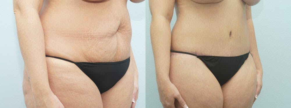 Body Lift Gallery - Patient 49149607 - Image 3