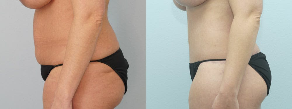 Body Lift Gallery - Patient 49149607 - Image 6