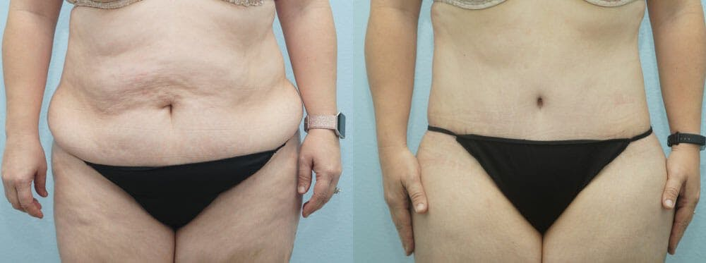 Body Lift Gallery - Patient 49149609 - Image 1