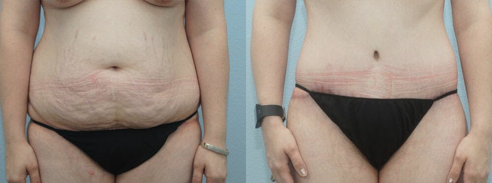 Body Lift Gallery - Patient 49149611 - Image 1
