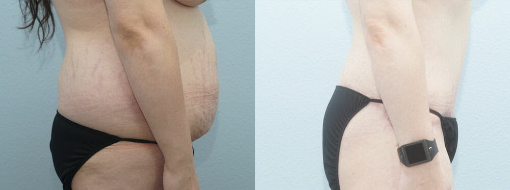 Body Lift Gallery - Patient 49149611 - Image 5