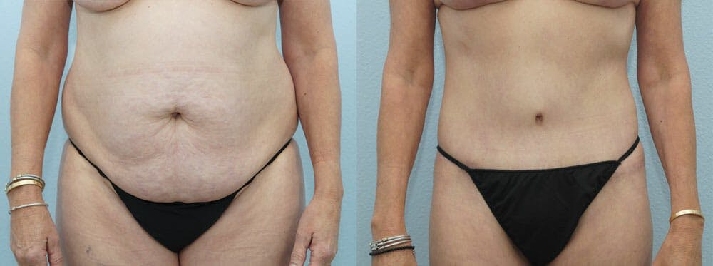Body Lift Gallery - Patient 49149612 - Image 1