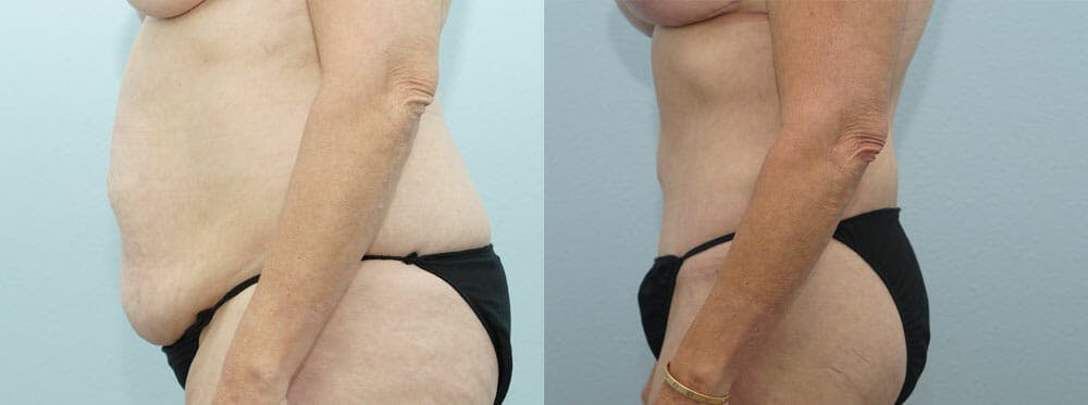 Body Lift Gallery - Patient 49149612 - Image 3