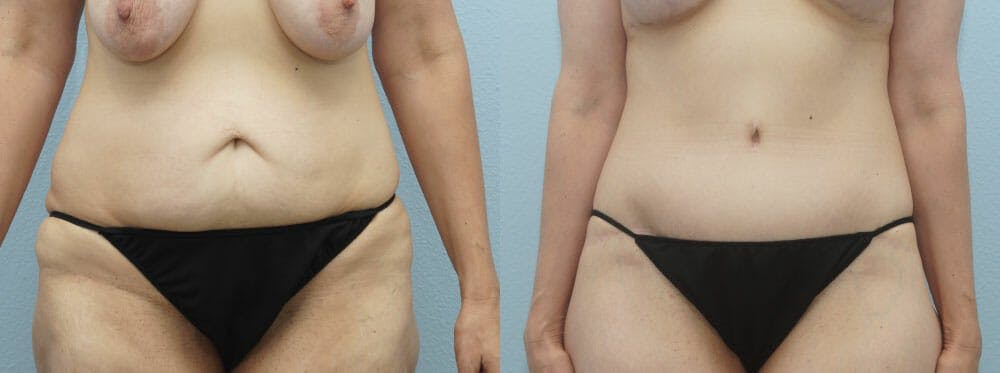 Body Lift Gallery - Patient 49149616 - Image 1