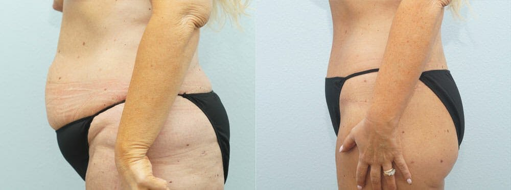 Body Lift Gallery - Patient 49149622 - Image 3