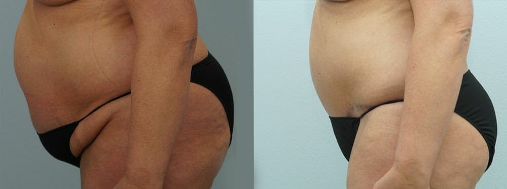 Body Lift Gallery - Patient 49149632 - Image 3