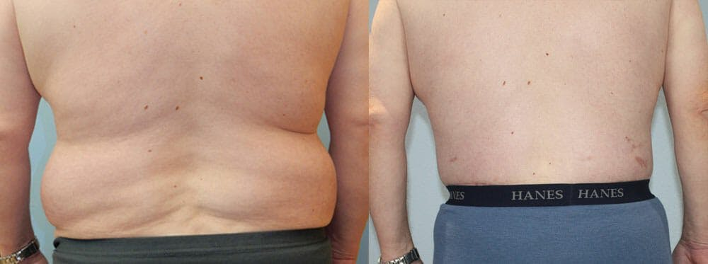 Body Lift Gallery - Patient 49149640 - Image 2