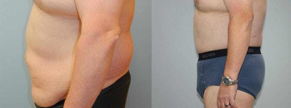 Body Lift Gallery - Patient 49149640 - Image 3