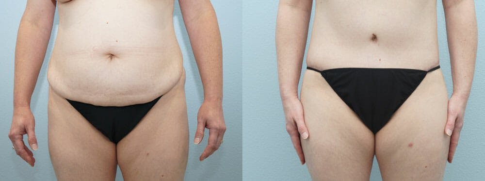 Body Lift Gallery - Patient 49149647 - Image 1