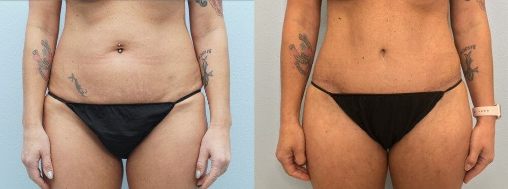 Tummy Tuck Gallery - Patient 49149763 - Image 1