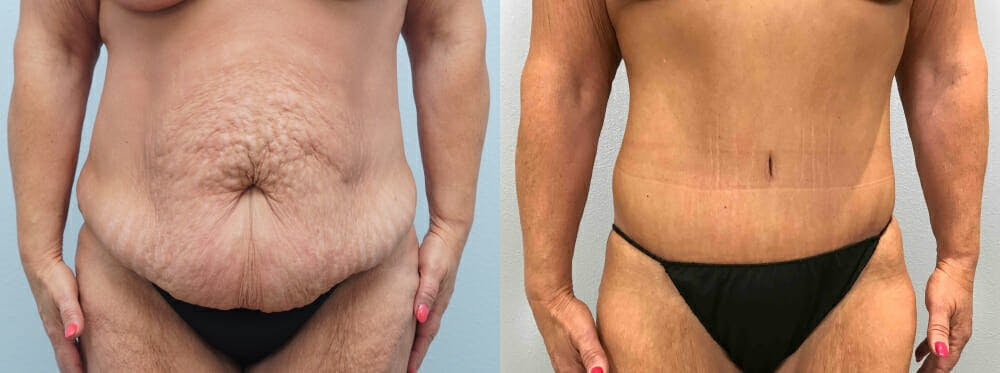 Tummy Tuck Gallery - Patient 49149764 - Image 1