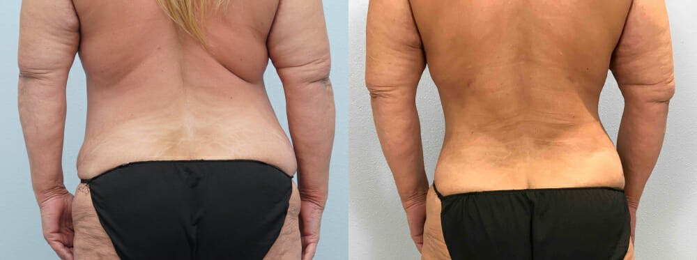 Tummy Tuck Gallery - Patient 49149764 - Image 2