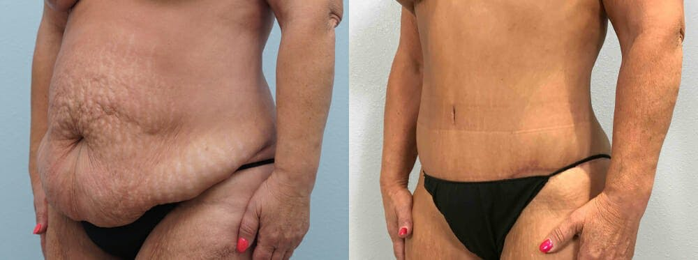 Tummy Tuck Gallery - Patient 49149764 - Image 3