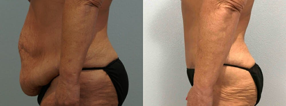 Tummy Tuck Gallery - Patient 49149764 - Image 4