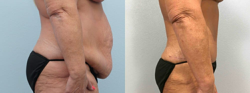 Tummy Tuck Gallery - Patient 49149764 - Image 5