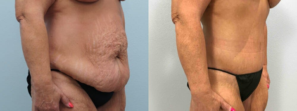 Tummy Tuck Gallery - Patient 49149764 - Image 6