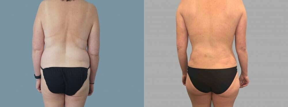 Tummy Tuck Gallery - Patient 49149770 - Image 2