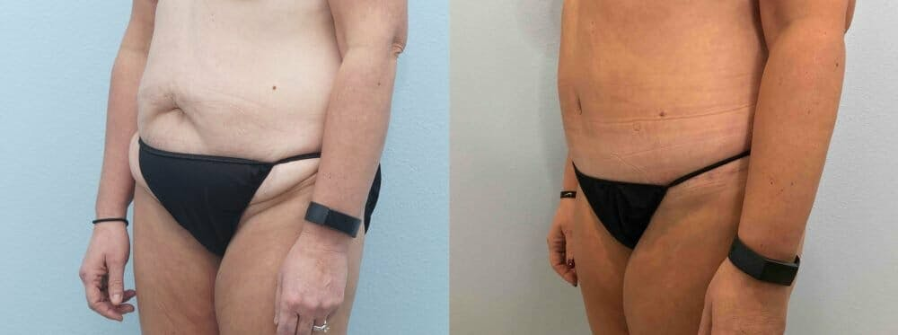 Tummy Tuck Gallery - Patient 49149770 - Image 3