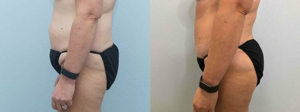 Tummy Tuck Gallery - Patient 49149770 - Image 4