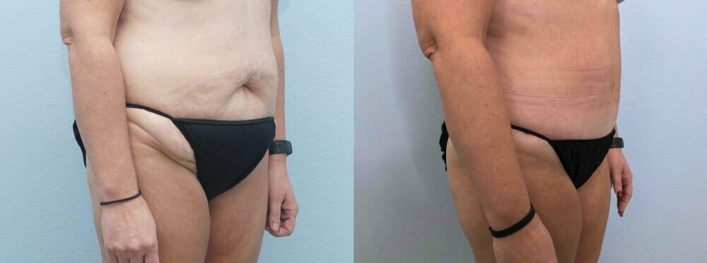 Tummy Tuck Gallery - Patient 49149770 - Image 5