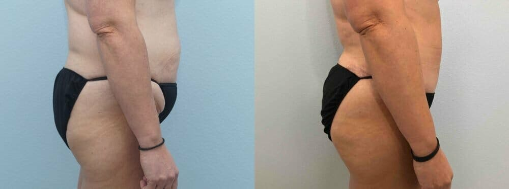 Tummy Tuck Gallery - Patient 49149770 - Image 6