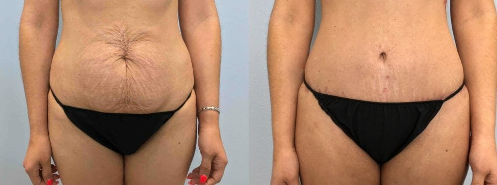 Tummy Tuck Gallery - Patient 49149774 - Image 1