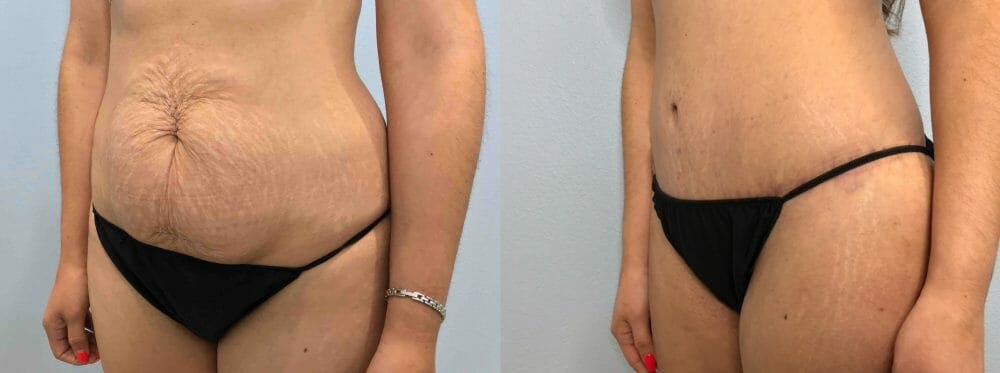 Tummy Tuck Gallery - Patient 49149774 - Image 2