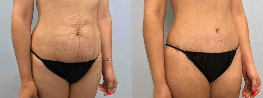 Tummy Tuck Gallery - Patient 49149774 - Image 4