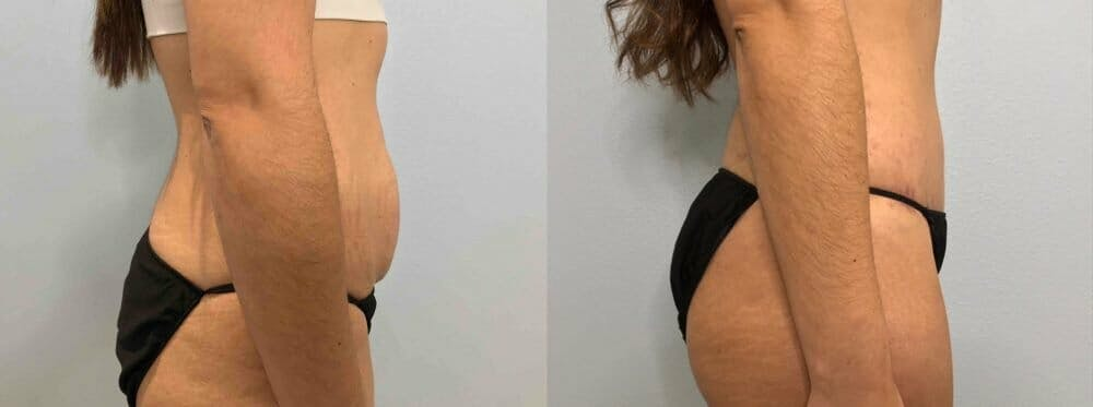 Tummy Tuck Gallery - Patient 49149774 - Image 5