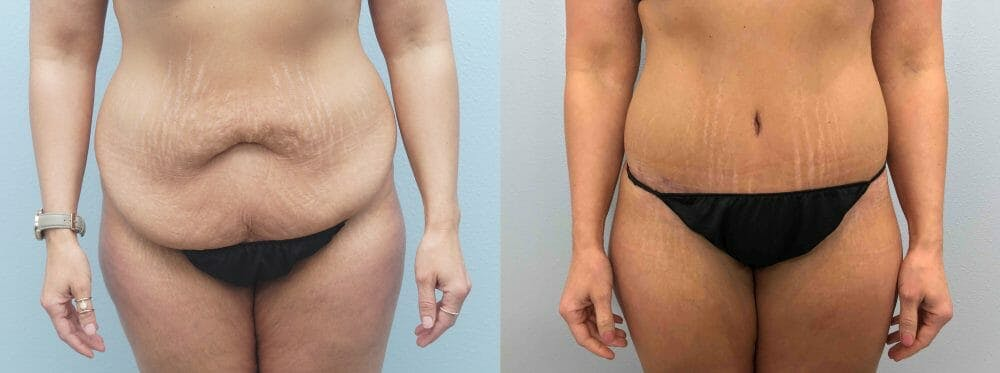 Tummy Tuck Gallery - Patient 49149777 - Image 1
