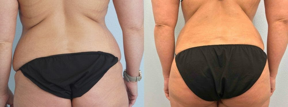 Tummy Tuck Gallery - Patient 49149777 - Image 2