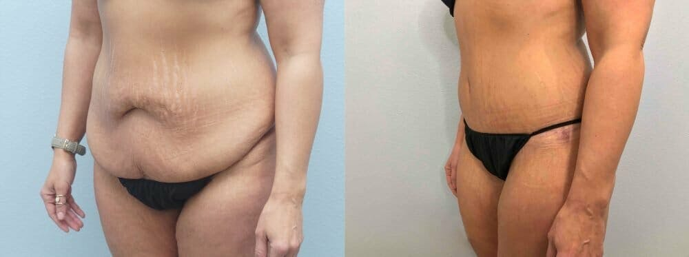 Tummy Tuck Gallery - Patient 49149777 - Image 3