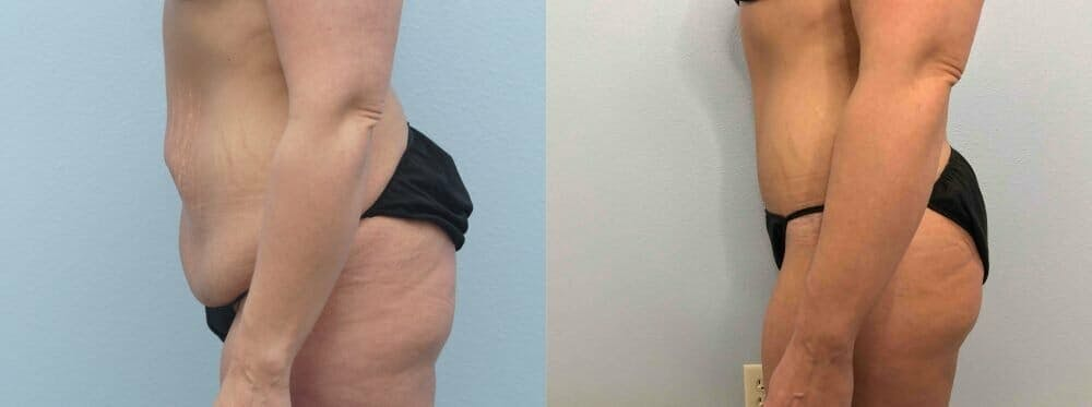 Tummy Tuck Gallery - Patient 49149777 - Image 4