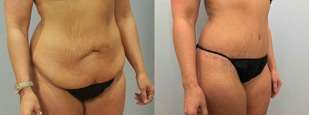 Tummy Tuck Gallery - Patient 49149777 - Image 5